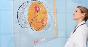 w przebiegu somatycznych 300x162 Zaburzenia psychiczne w przebiegu chorób somatycznych